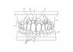 IP-medical-11-Utility-Patent-Drawings