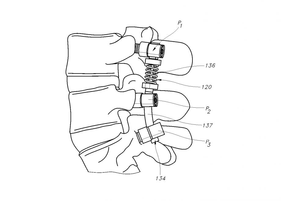 IP-medical-4-Patent-Drafting
