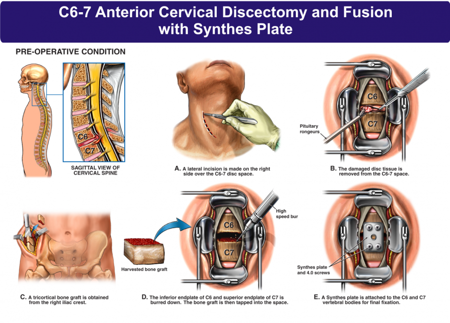 C6 7 Anterior Cervical Discectomy And Fusion With Synthes Plate